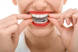Why should I get Invisalign in Herndon?