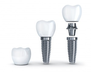 How can your Herndon dentist help restore your smile?